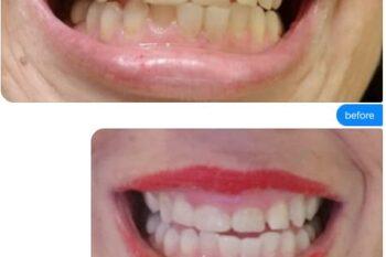 how-to-whiten-teeth